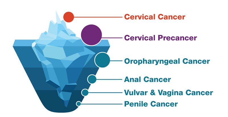 high risk hpv leads to cancer)